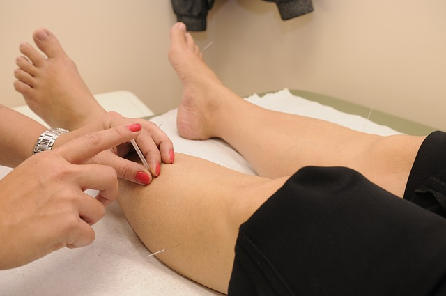 Different Kinds of Acupuncture Techniques